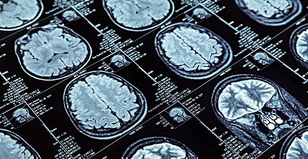 Can Brain Scans Help Predict Effectiveness of Antidepressants?