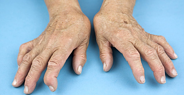 Concerns Grow Over Arthritis, Psoriasis Drug's Link to Liver Damage
