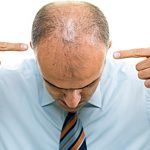 4 Common Hair Loss Treatments and Their Side Effects