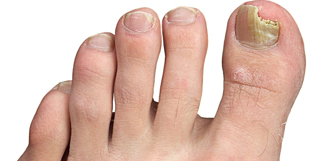 5 Options for Treating for Nail Fungus