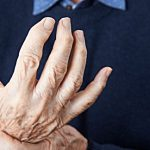 Dealing With Side Effects of Arthritis Medications