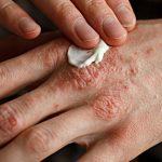 Managing Eczema: Are New Treatments Like Eucrisa Worth It?