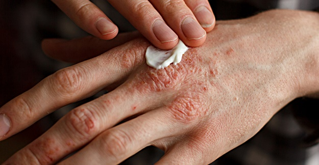 What You Need to Know About Treating Eczema