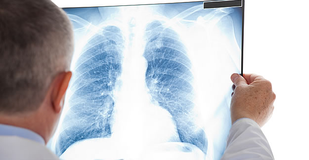 Innovations in Lung Cancer Treatments