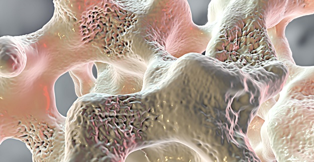 Task Force Maintains Osteoporosis Screening Recommendation
