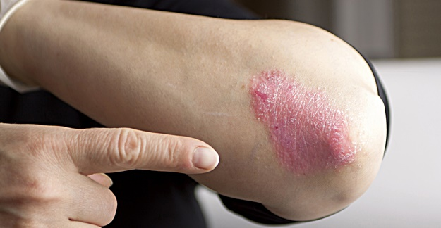 What You Should Know Before Taking Psoriasis Drugs