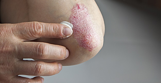 New Psoriasis Med Demonstrates Efficacy, Safety Over Long Term