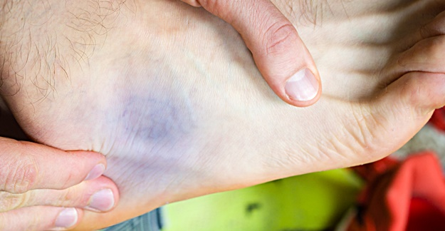 Opioid Prescribing Relatively High for Sprained Ankles