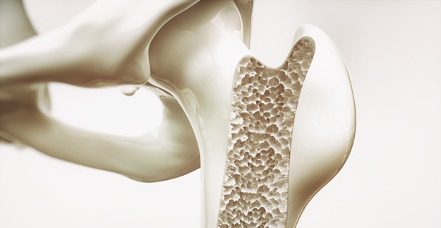 No Bones About It: Treating Osteoporosis and Bone Loss Without Medication