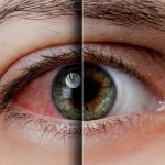 5 Worst Drugs that Cause Dry Eye Disease